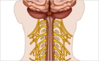 Cervical Nerve Root Block Effective on Cervical Herpes Zoster-Related Burden