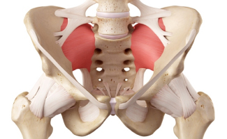 Sacral Lateral Branch RF Ablation Effective for Sacroiliac Joint Complex Pain